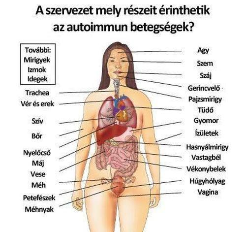 ízületi betegségek mirigyei)