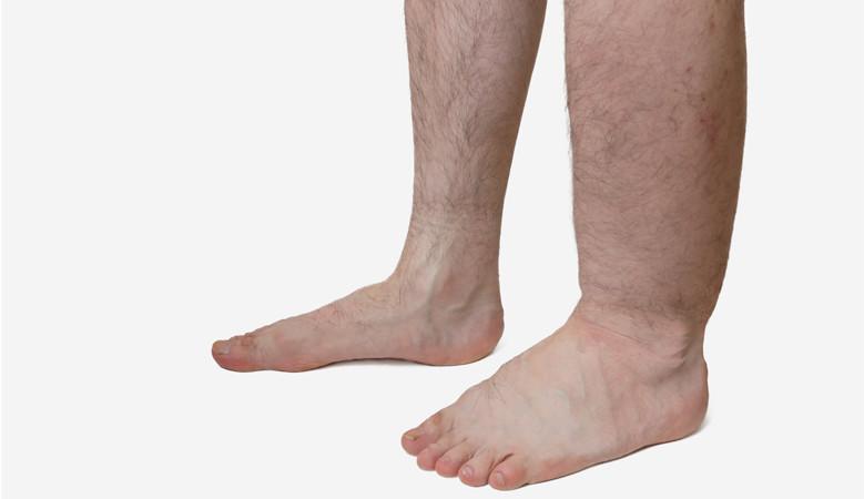ízületi fájdalom a láb felett