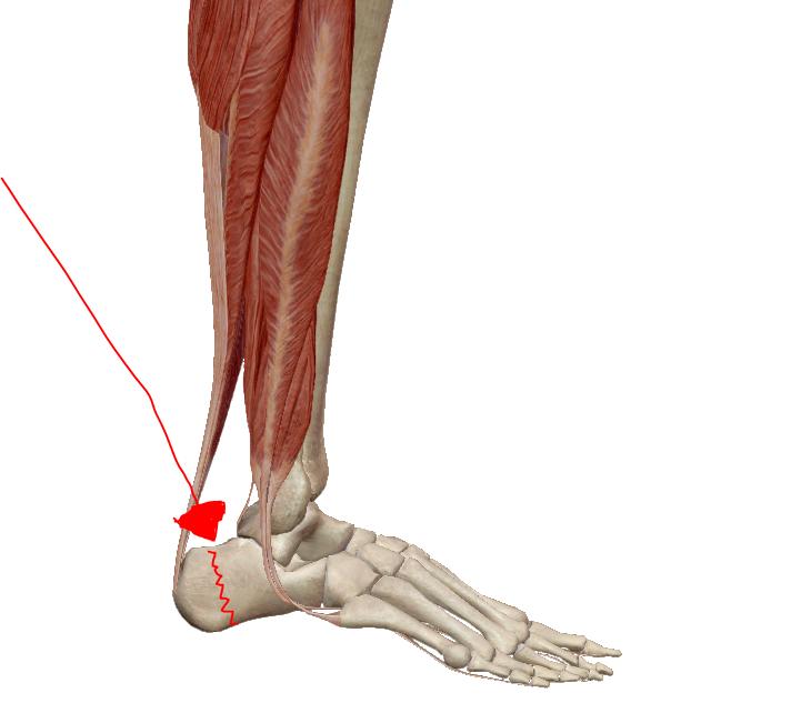 A láb betegségei