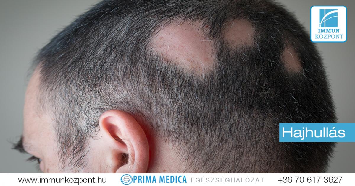 ízületi fájdalom hajhullás időskorúak akut artrózisának kezelése