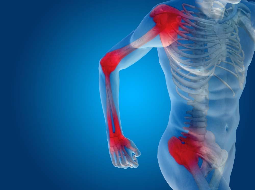 ízületi fájdalom ízületi fájdalmak esetén