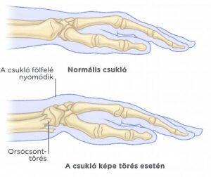 ízületi törés kar kezelése)