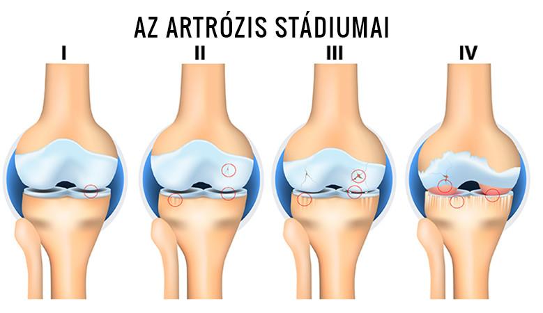 artrózis kétoldalú kezelése