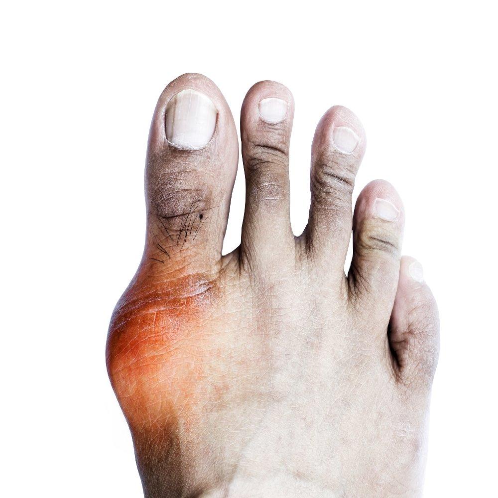 térdízületi ödéma artrózisa