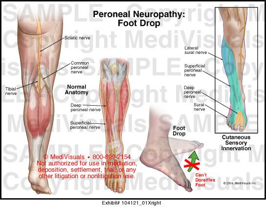 fájdalom a bal könyök ízületében vegyes kötőszöveti betegség tünetei