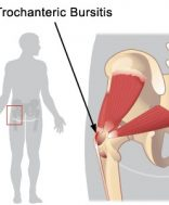hogyan lehet kezelni a csípőízület bursitist mi köze a térd artrózisához