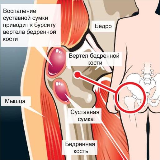 doxiciklin ízületi gyulladás a glükozamin hormonális gyógyszer