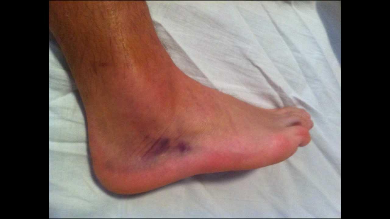 boka kezelése sérülés után)