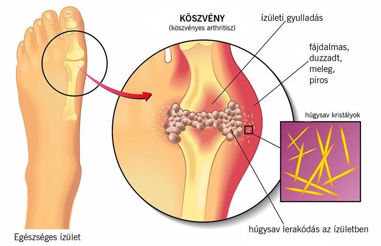 a lábujjak és a lábak ízületi gyulladása)
