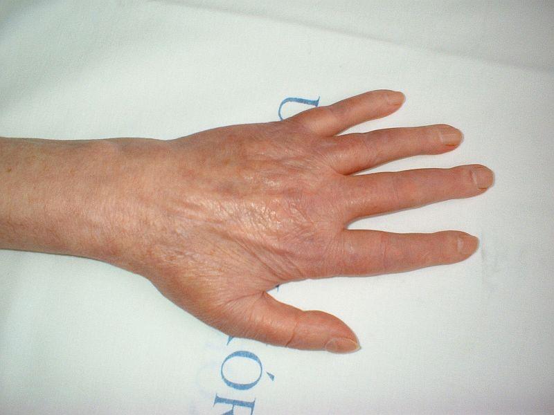 artritisz arthrosis kezelésének módszerei