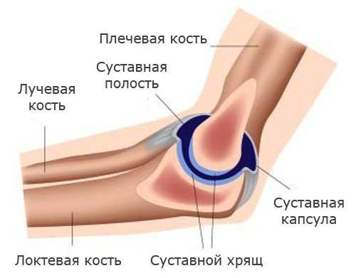 fájdalom és bőrpír a könyökízületben)
