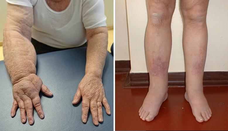 artritisz artrózis kezelési rendje
