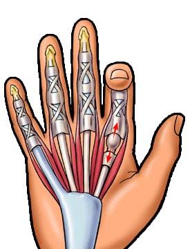 miért fáj az ujjak falának ízületei)