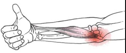 könyök fájdalom epicondylitis)