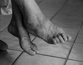 a bal kéz ízületének fájdalmainak kezelése)