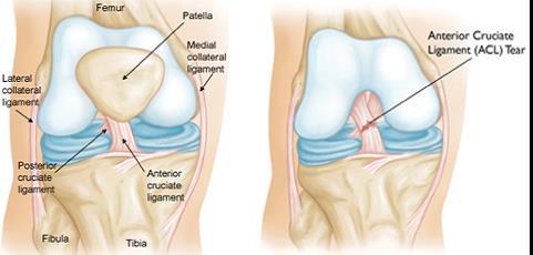 folyadék térdízületi tünetek kezelése)