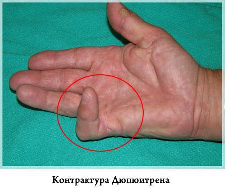 a boka ligamentumok teljes törése)