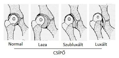 hogyan lehet felismerni a csípőízület betegségét