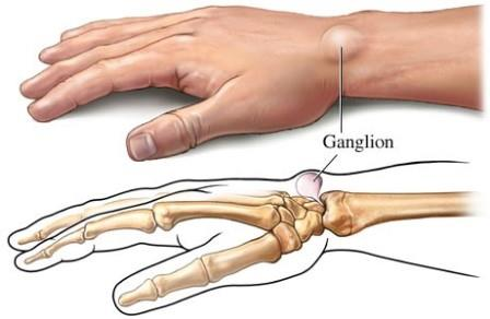 ízületi gyulladás a jobb kéz könyökében