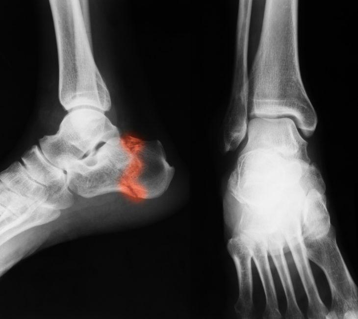 a láb ízületei megsérülnek törés után