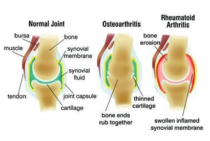 ízületi kezelés artrózisának súlyosbodása a bal vállízület ízületi gyulladása mi ez