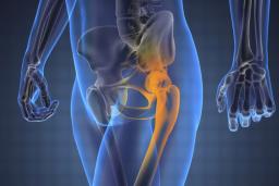 fájdalomcsillapítás a csípőízületekben)
