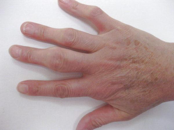 a kézízületek duzzanata