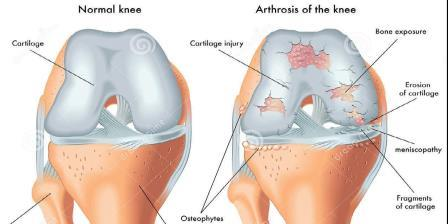 2 térd gonarthrosis artrózisa)