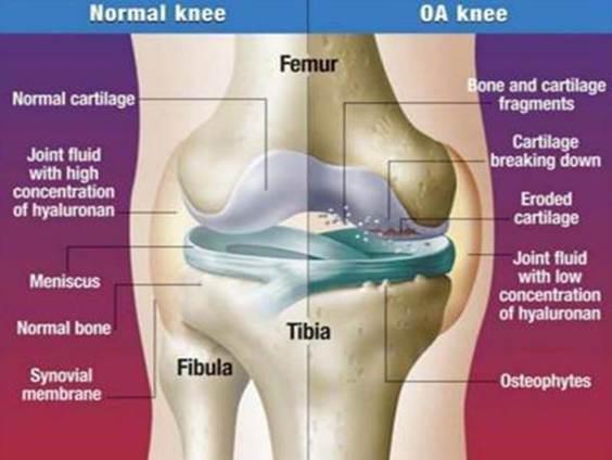 hogyan lehet megszabadulni a térd artrózisától)