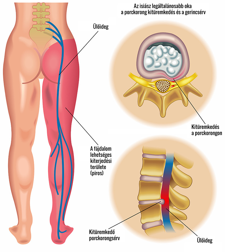 fájdalom a bal csípőben a csípőízületben