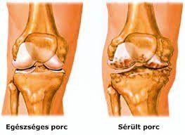artrózis kezelés térd artritisz készítmények ízületek összetételéhez