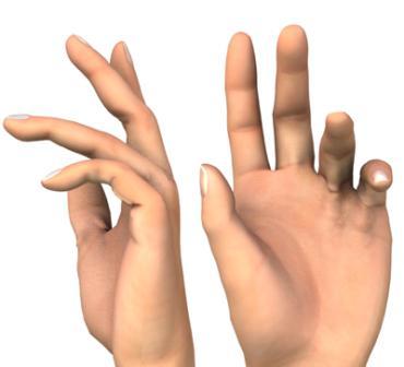 a kéz deformációja reumatoid artritiszben