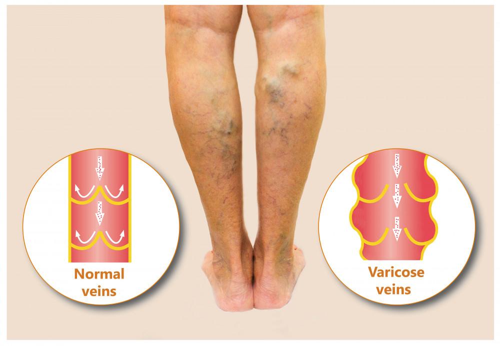 csontbetegség fájdalma a lábak ízületeiben