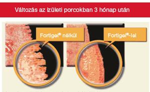 térdízületi kenőcsök artrózissal)