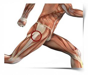 csípőízület fáj ízületi kő fájdalom