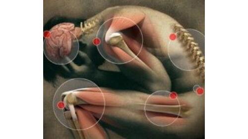 jó kenőcs a térdízületek fájdalmaira fájdalom az ujjak ízületeiben melyik orvos