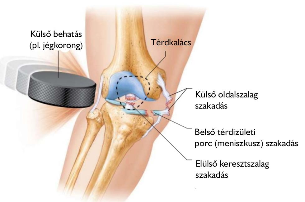 térd sérülés utáni gyógyulás cédrus tinktúra az ízületek kezelésében
