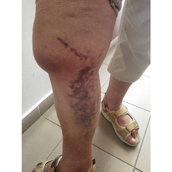 kenőcsök ízületek sérülések kezelésére