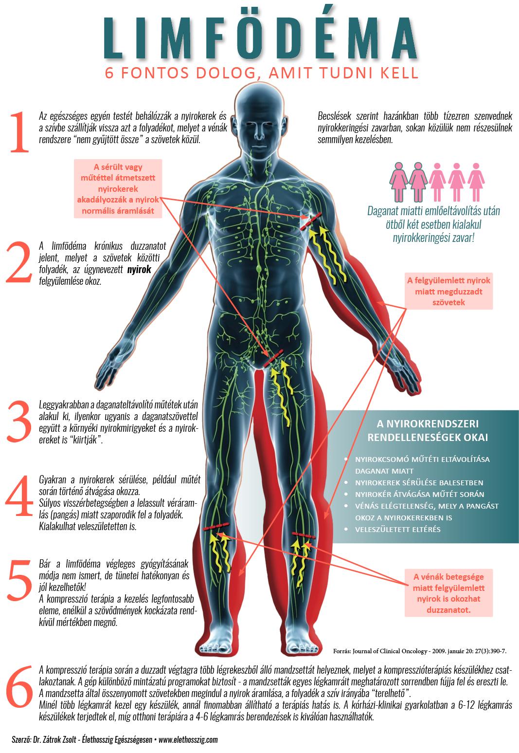 Degeneratív ízületi betegségek - Goodwill Pharma - Webshop