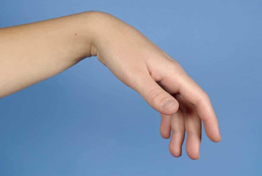a kéz ütések az ujjain ízületi merevség artrózissal