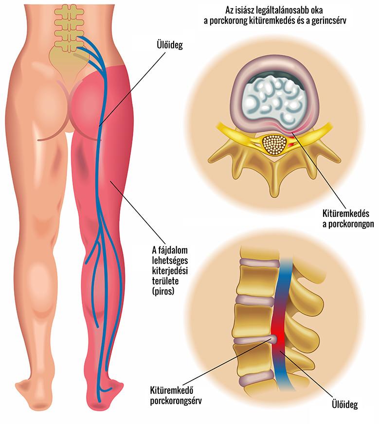 izomfájdalom a csípő területén)