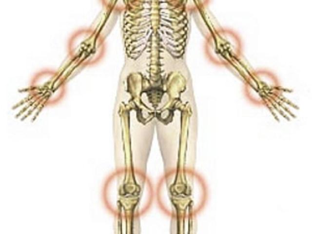 a csontok és az ízületek folyamatosan fájnak