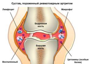 lymphogranulomatosis ízületi fájdalom)