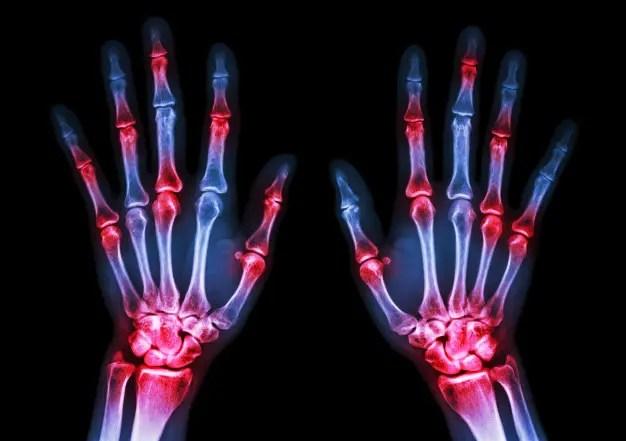 arthrosis a york-kezelés során)