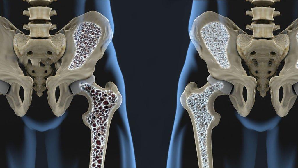 kenőcs csontritkulás esetén
