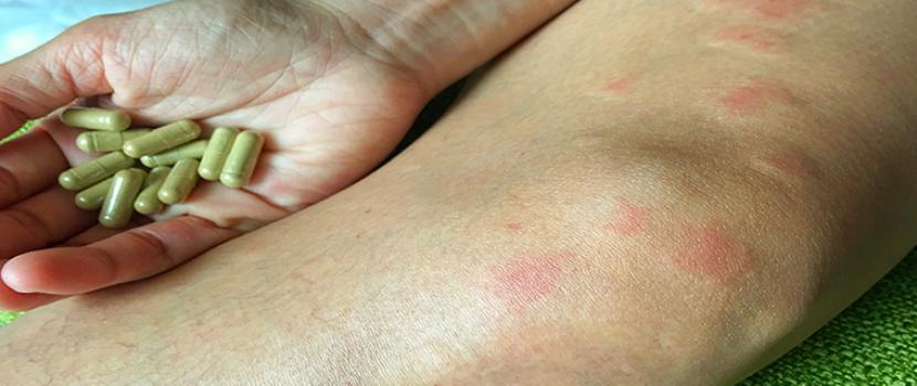 a kötőszöveti vaszkulitisz szisztémás betegségei)