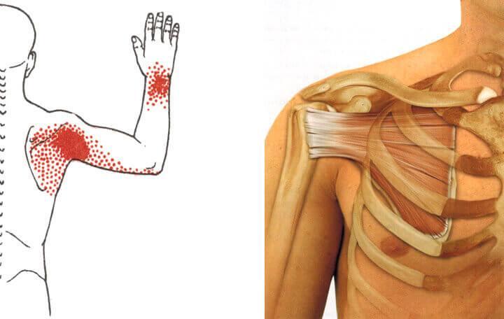 kenőcs a gerinc osteokondrozisához ízületi összehúzódási betegség