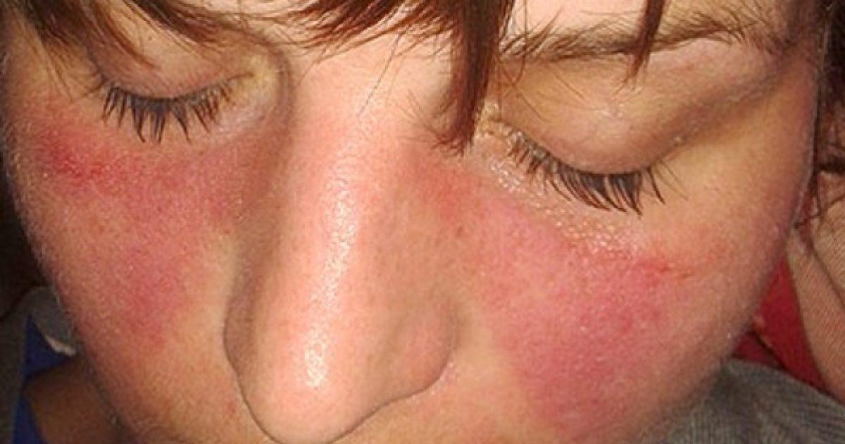 kötőszöveti gyulladásos szindróma