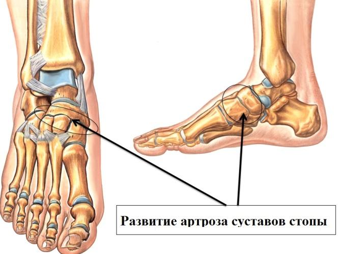 a láb kicsi ízületeinek betegségei