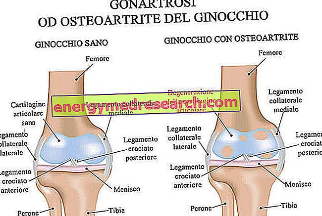 a térd gonarthrosisának hatékony kezelése